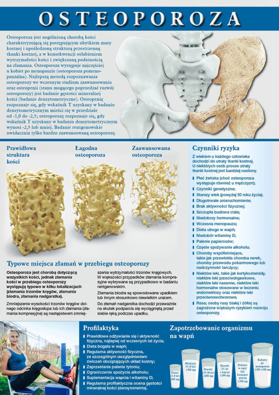Osteoporoza - A4-ver-2-1-min